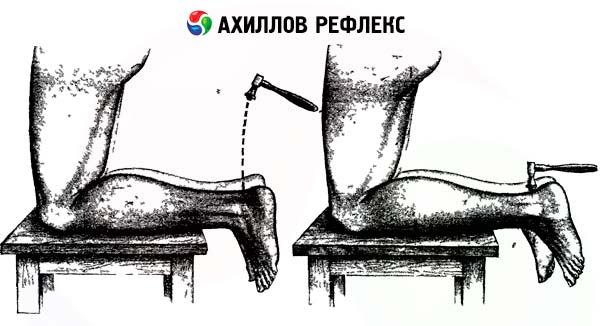 Повышенные рефлексы ног причины