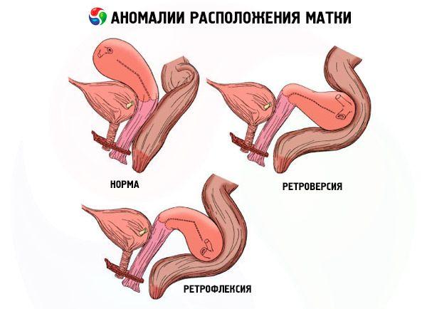 masturbiruyushie-anomalii-vlagalish-foto-bolshoy