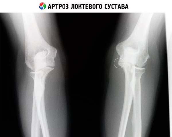 Какой должен быть ренген снимок локтевого сустава здорового ребёнка щелкает плечевой сустав что делать