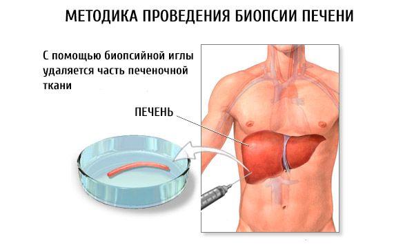 Болит спина после биопсии шейки матки