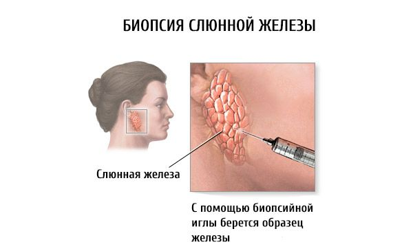 Диета при воспалении суставов - Лечение Суставов