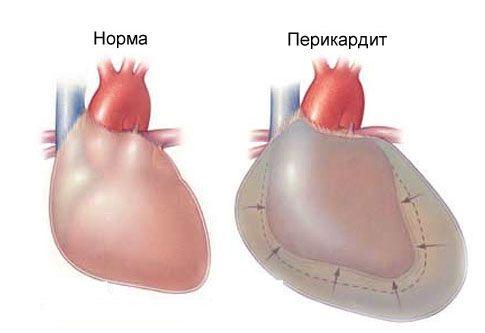 Острый перикардит и и боли в груди слева