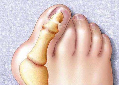 Пальцы на ногах расходятся
