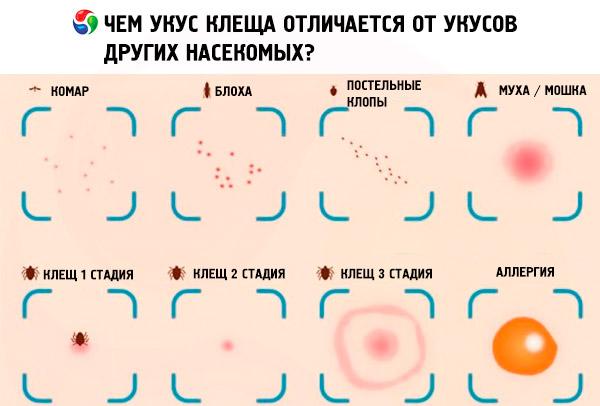 Если укусил клещ: симптомы после укуса клеща