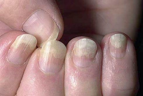 Пахионихия ногтя на ногах фото