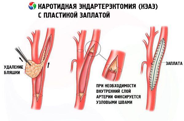 Стеноз сонных артерий, диагностика, лечение