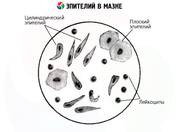 эпителиальные клетки в гинекологии