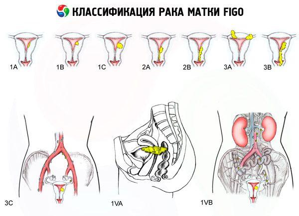 закладке Подписчики инвалидность при раке шейки матки маленький самый доступный