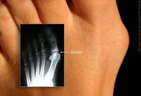 Вульгусная деформация большого пальца стопы