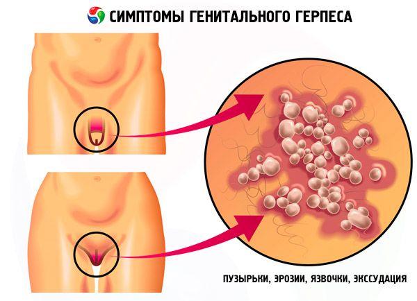 герпес гинекология симптомы