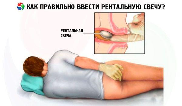 Помогает ли холод при анальной трещине