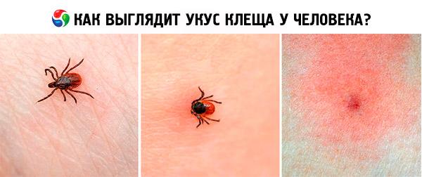 Аллергия на постельного клеща симптомы