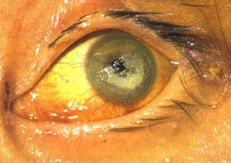 Двусторонний кератит, вызванный Candida, у ребенка с тяжелой формой иммунодефицита
