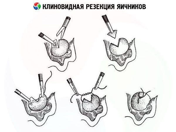 После резекции яичника киста