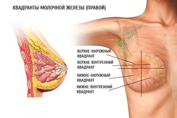 Как лечить кисту молочной железы народными средствами и лекарствами?