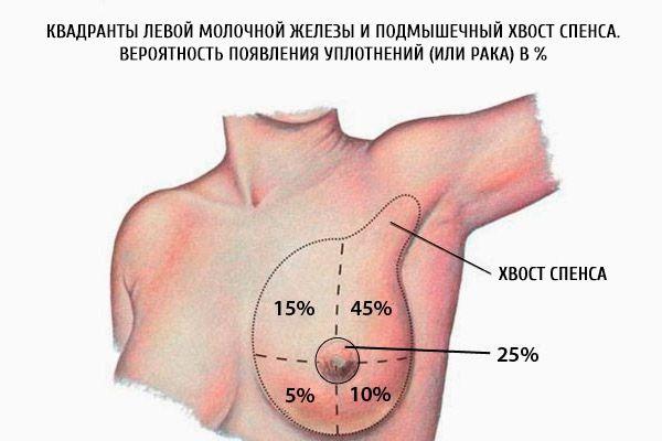 Квадранты левой молочной железы и подмышечный хвост спенса. Вероятность появления уплотнений (или рака) в %