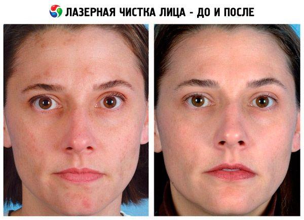истонченная кожа лица восстановление разберем схему парковок