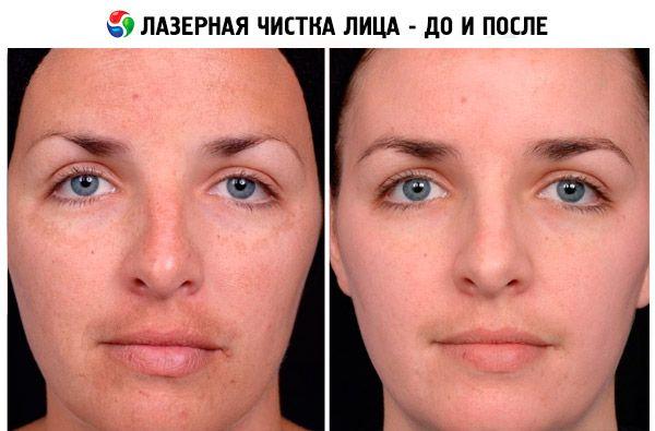 Очищающее масло для лица. Инструкция по применению