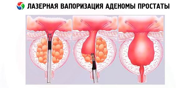 Хирургический лазер для вапоризации простаты