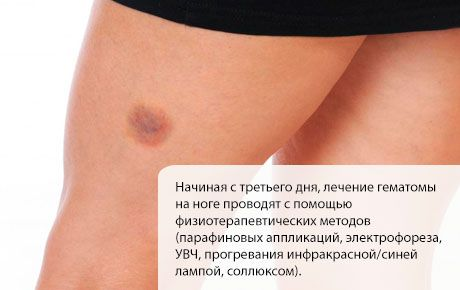 Лечение гематомы на ноге