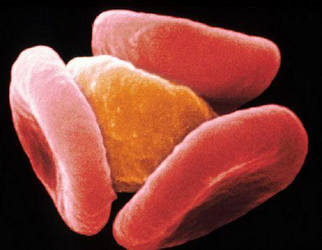 Малярийный паразит заставляет иммунитет забыть о своём существовании
