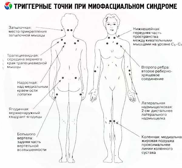 Болят мышцы спины вдоль позвоночника: что делать?
