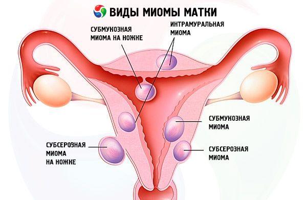 Миома при похудении pohudenieujuzefyh.miragro-72.ru