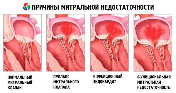 Регургитация митральная