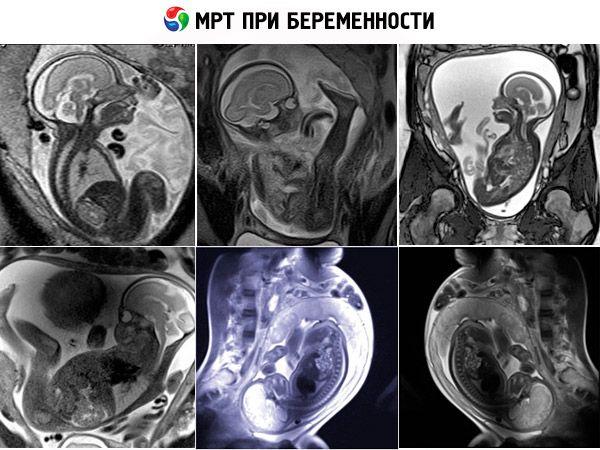 МРТ гипофиза с контрастом и без: что показывает