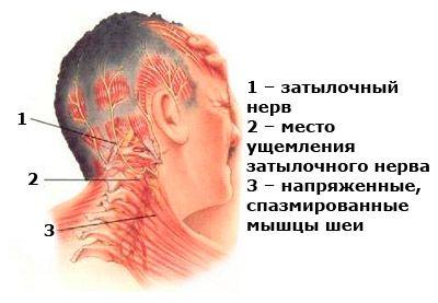 Боль в боку спины отдает в ногу