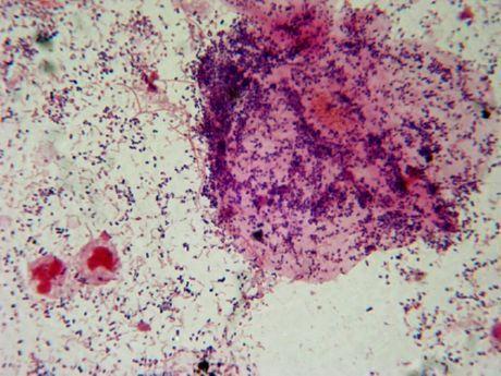 Как лечить бактериальное воспаление у женщин лечение