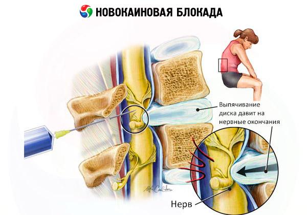 Блокада при болях в пояснице какие лекарства