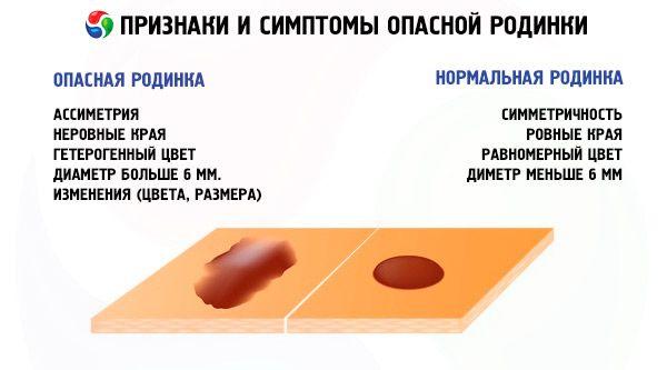 Папиллома под языком лечение