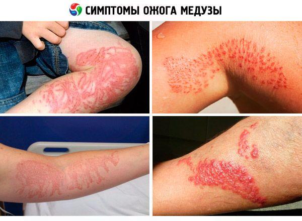 медуза кожное заболевание