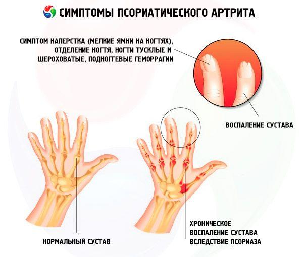 энтезопатия при псориатическом артрите лечение