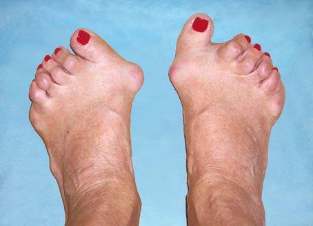 неумывакин и ревматоидный артрит