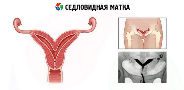 Беременность при седловидной матке