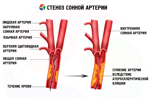 Какие продукты повышают холестерин в крови быстро и эффективно
