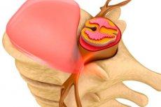 Грыжа шморля: лечение, симптомы, чем опасна | Компетентно о ...