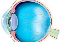 Ангиопатия сетчатки глаза по гипотоническому типу