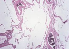 Степени рака молочной железы описание стадии 14