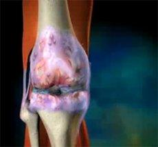 Синовиальных суставов хламидиоз и суставы какая связь заболевание лекарства