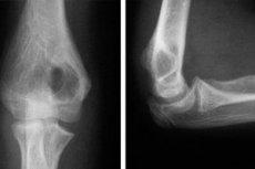 Рентген локтевого сустава человека суставы чаще