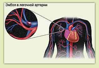 Легочная эмболия и и боли в груди слева