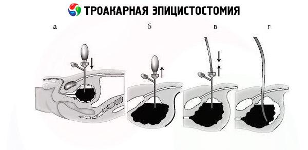 Подготовка к цистоскопии мочевого пузыря у женщин