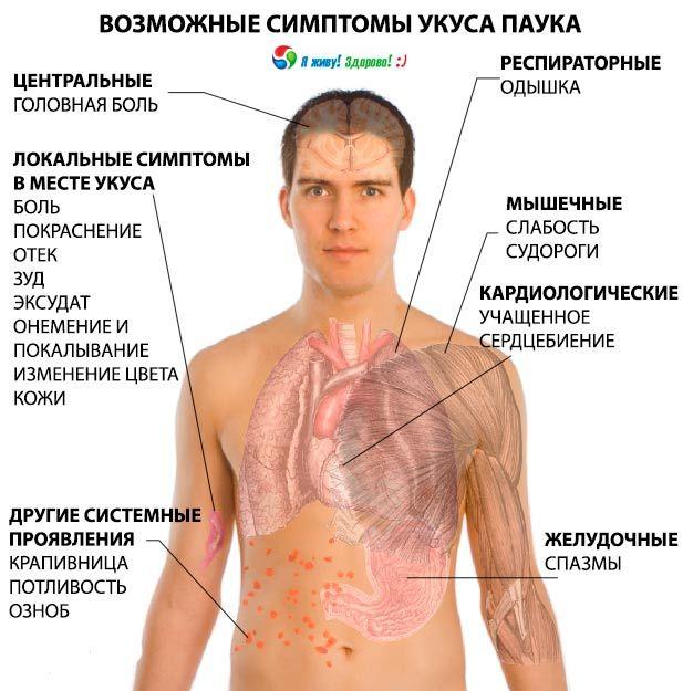 Симптомы укуса паука