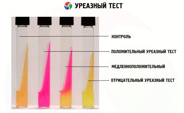 Дыхательный хелик-тест: подготовка и проведение
