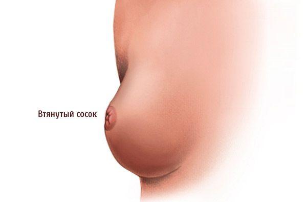 Беременность сосок втянут